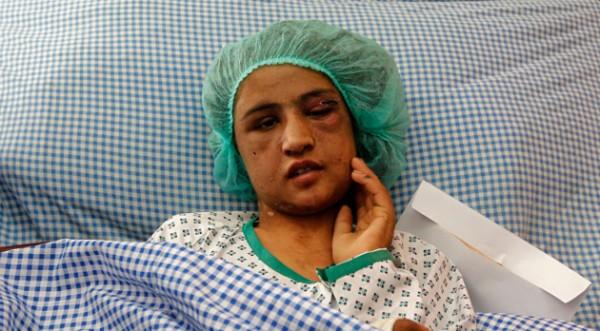 Окървавеното лице на правата на жените в Афганистан