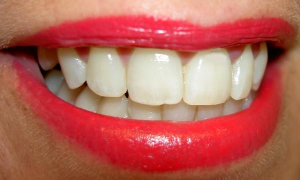 Бързи лекове при зъбобол