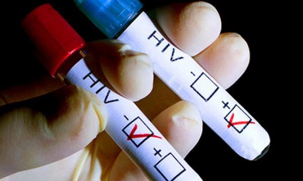 Трима регистрирани със СПИН за месец в Бургас