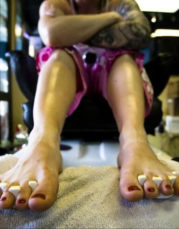 Гъбички по ноктите на краката – от какво зависи лечението?