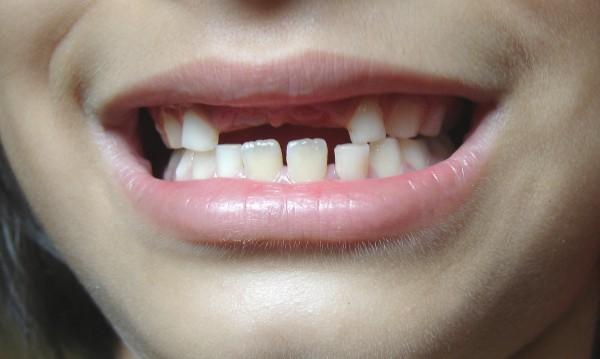 Родната картинка: Зъб – пауза, пауза – зъб!