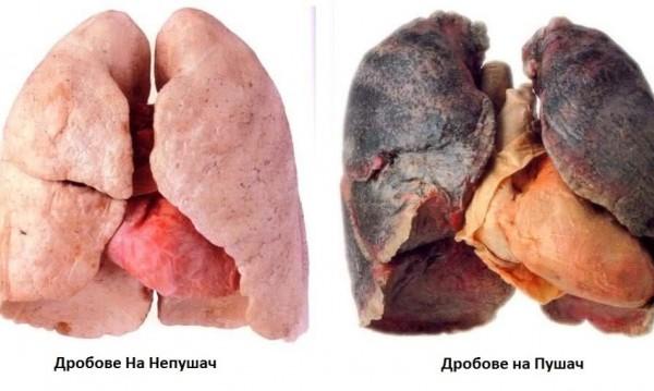 Смъртта ни дебне върху 65% от кутиите на цигарите