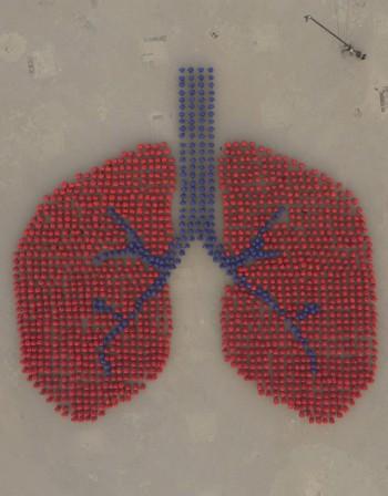 Рак на белия дроб – кога рискът е най-голям?