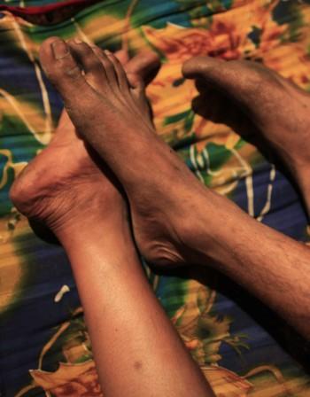 Най-често отоците на краката се дължат на болни вени