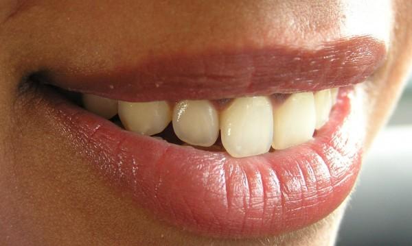 Почистете зъбния си камък без помощта на стоматолог