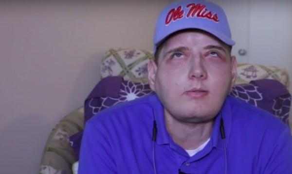 15 години битка за живот! Той е с трансплантирано лице