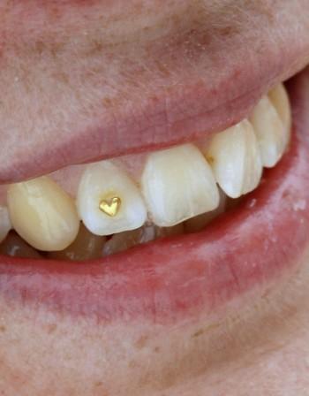 На какво може да се дължи обезцветяването на зъбите?
