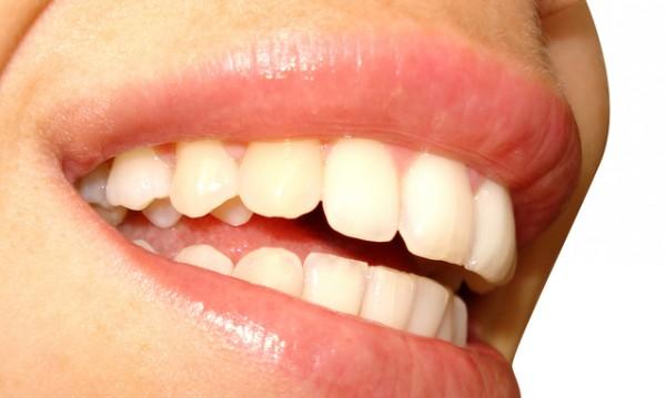 От кои храни и напитки зъбите пожълтяват?