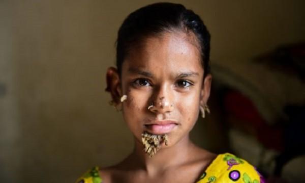 Момиче от Бангладеш - нов случай на човек-дърво