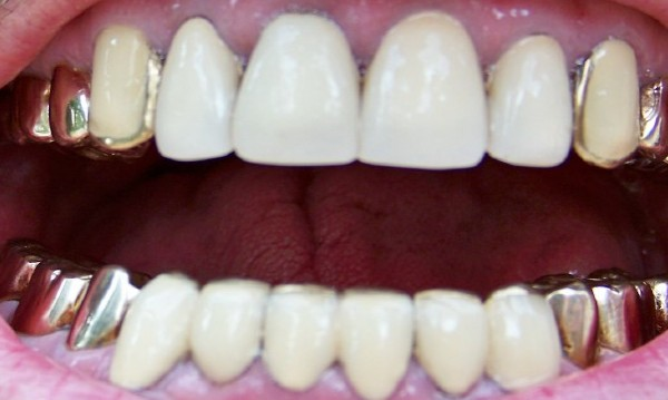 И златните зъби не пожалиха... Дядо ги метна на апаши