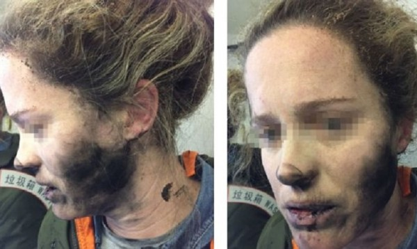 Австралийка в сажди – слушалките й гръмнаха по време на полет