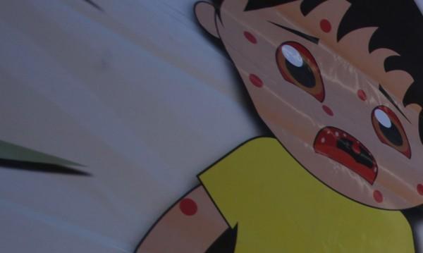 """Още едно дете от """"Столипиново"""" с морбили, болните вече са седем"""