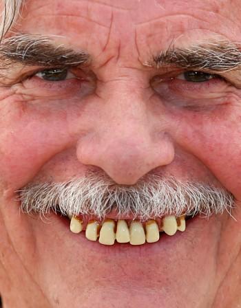 Зъбният камък причинява пародонтоза