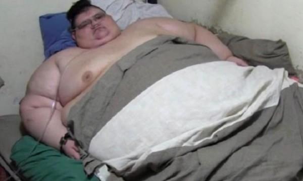 Оперират най-дебелия мъж в света: Някои умират от тъга!