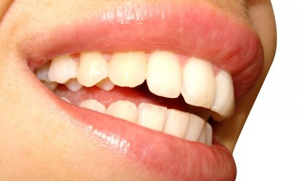 Най-добрите храни за бели зъби