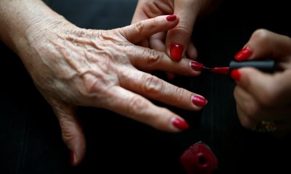 Няколко причини за жълти нокти