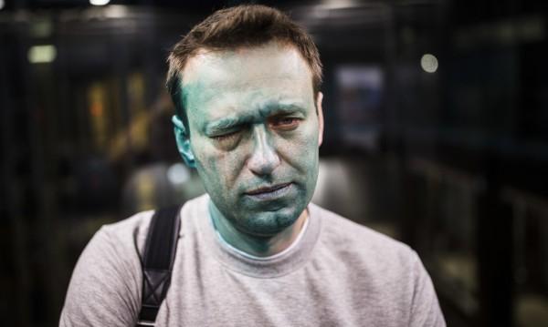 Опозиционер зад граница: Навални опериран в Испания