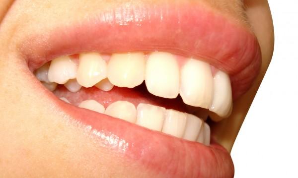 На какво се дължи металният вкус в устата?