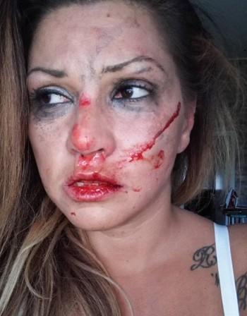 Сани Алекса – вече в безопасност, шведът и преди я удрял