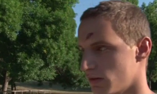 Случаен инцидент в скейтпарк, а след това – бой, ритници, кръв...