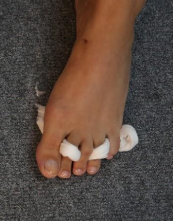 Промени по ноктите - кога става въпрос за болест?