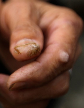 Гъбични инфекции по кожата – Кои са симптомите?