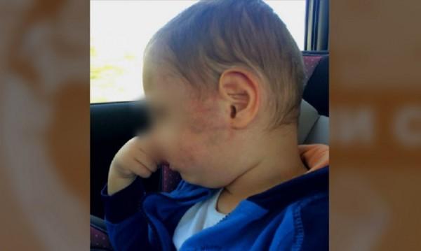 Насилие или инцидент: 2-годишно със синини след ясла