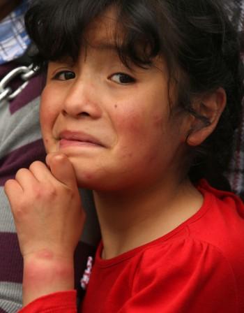 Автоимунни заболявания: Как променят кожата?