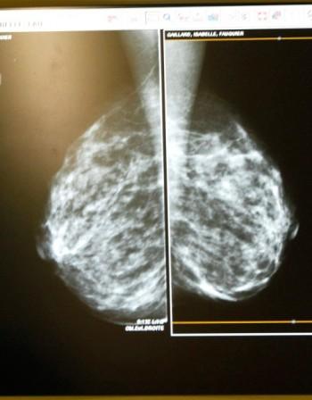Самоизследване на гърдите вкъщи - за какво да внимавате?