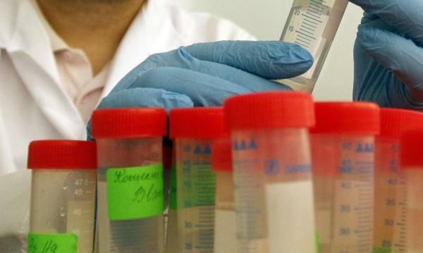 РЗИ: Нов случай на СПИН е установен в Кюстендилско