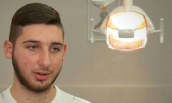 Лекари спасиха момче с огромен тумор на лицето