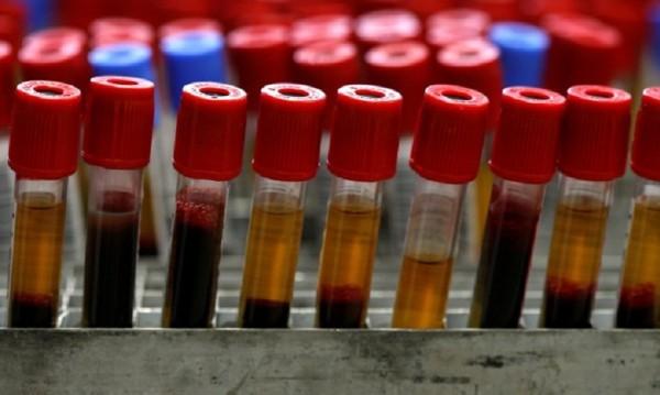 Научен пробив! Кръвен тест открива 10 типа рак