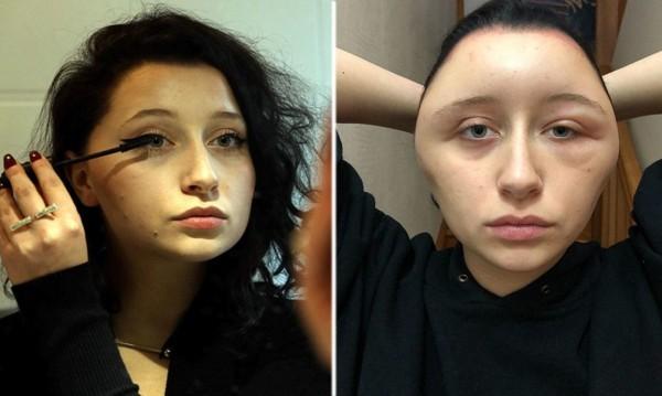 Суетата среща алергиите: За рисковете при боите за коса