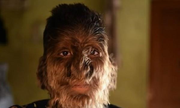 Момчето-върколак: 13-годишният Лалит, обречен да е различен