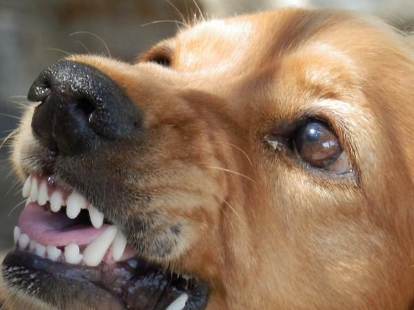 3-годишно дете е било нахапано жестоко от домашно куче в