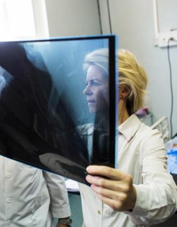 Що за коварно заболяване е остеопоразата?