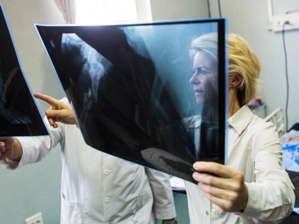 Остеопорозата е едно от най-разпространените метаболитни заболявания на костите. Представлява