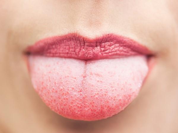 Виждате нещо странно в огледалото, когато си отворите устата? Езикът
