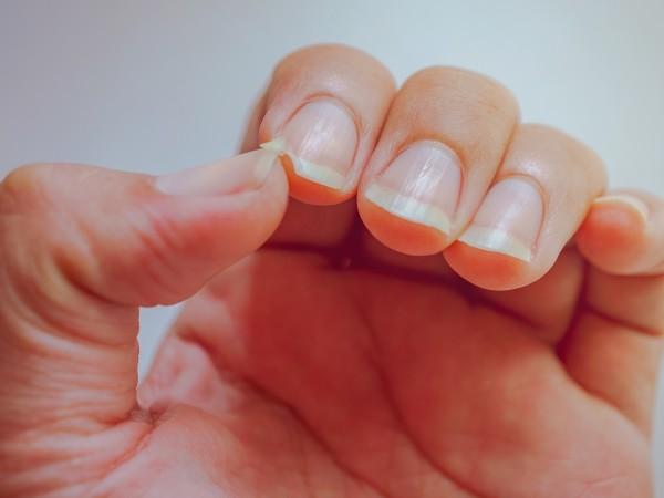 Чупенето и разслояването на нокътната плочка е често срещан проблем.