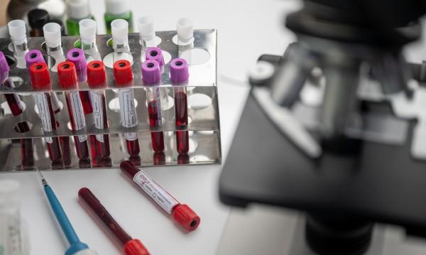 Светът разчита на Индия за ваксина срещу коронавируса