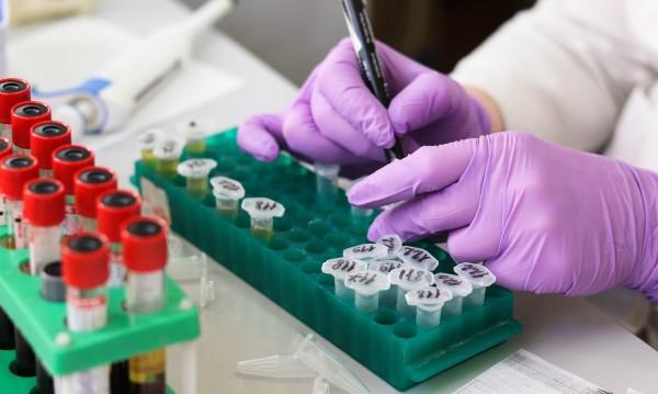 """Още трима са заразени с коронавирус от завод """"Костал"""""""