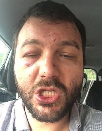 Британци пребиха зверски българин в Норич, возил ги в такси