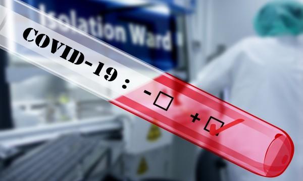 25-годишен лекар от Пазарджик е заразен с COVID-19
