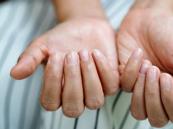 Ноктите се променят в зависимост от вътрешното състояние на организма.