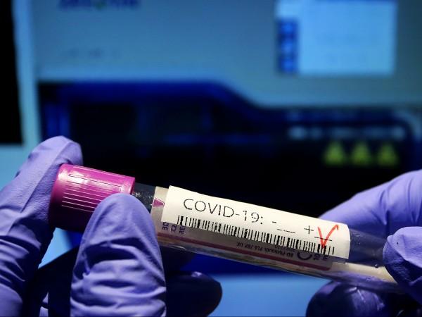 Според професор Николай Витанов потенциално заразените у нас с коронавирус