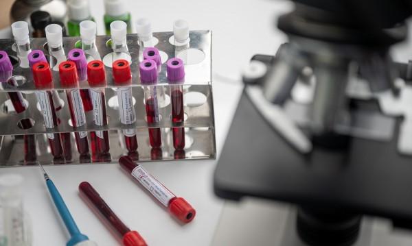 4 ваксини срещу COVID-19 дават добри резултати