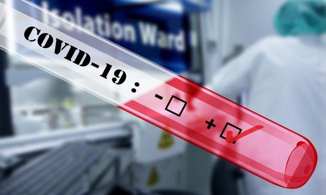 194 нови случая на коронавирус, 7 души са починали