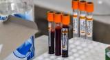 500 души починаха с коронавирус в Северна Македония