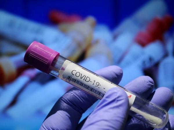 Общо 9 позитивни проби за COVID-19 са установени в Специализирания