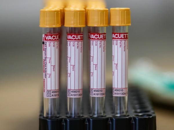 Не са открити нови положителни проби за коронавирус в Центъра